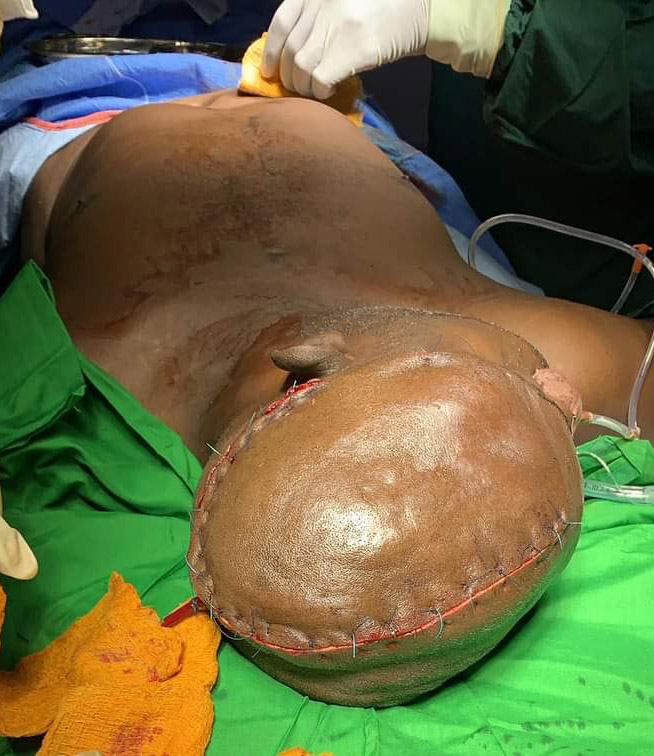 Bell Dome consult hospital conducts a successful brain surgery in Adamawa